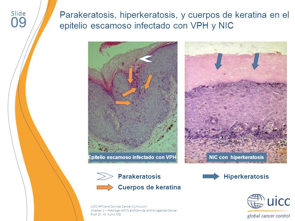 UICC HPV and Cervical Cancer Curriculum Chapter 1 – Histology of CIN and Cervical and Anogenital Cancer Prof. Dr. W. Kühn, MD Slide 09 NIC con hiperke