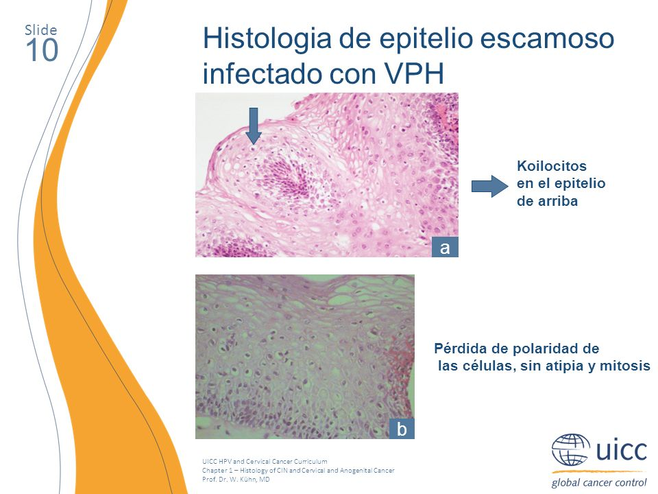UICC HPV and Cervical Cancer Curriculum Chapter 1 – Histology of CIN and Cervical and Anogenital Cancer Prof. Dr. W. Kühn, MD Slide 10 Histologia de e