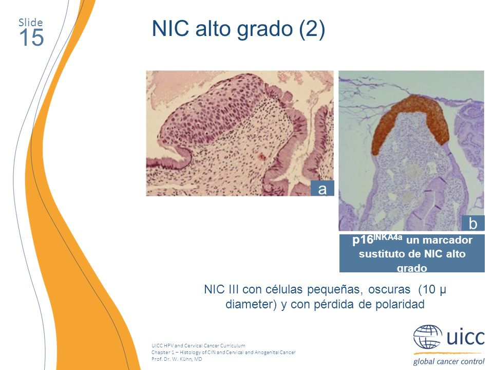UICC HPV and Cervical Cancer Curriculum Chapter 1 – Histology of CIN and Cervical and Anogenital Cancer Prof. Dr. W. Kühn, MD Slide 15 NIC alto grado
