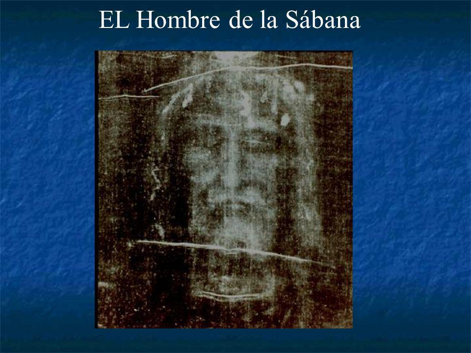 EL Hombre de la Sábana Imagen real de la Sábana y su negativo fotográfico