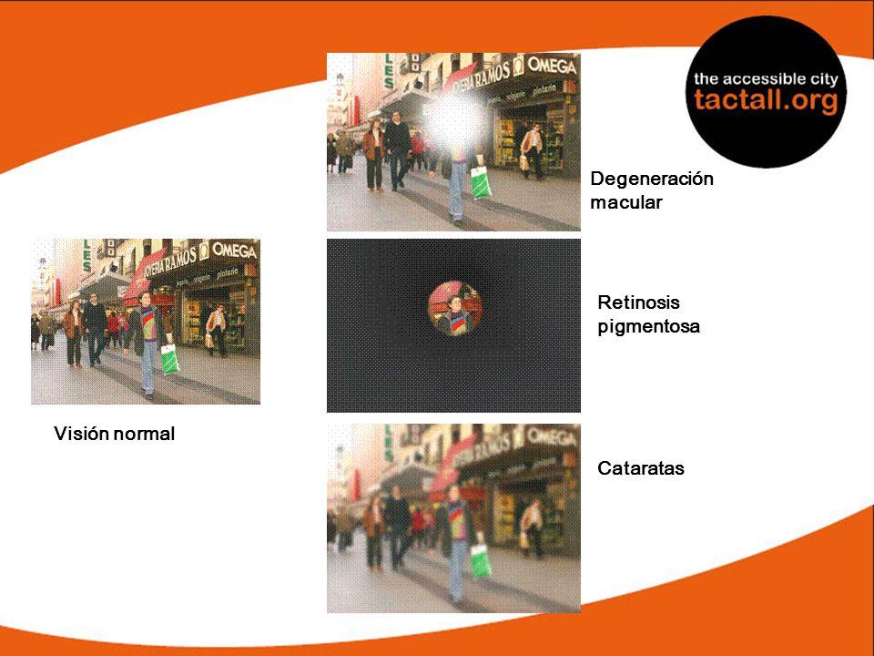 Visión normal Degeneración macular Retinosis pigmentosa Cataratas