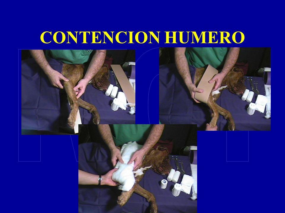 CONTENCION HUMERO