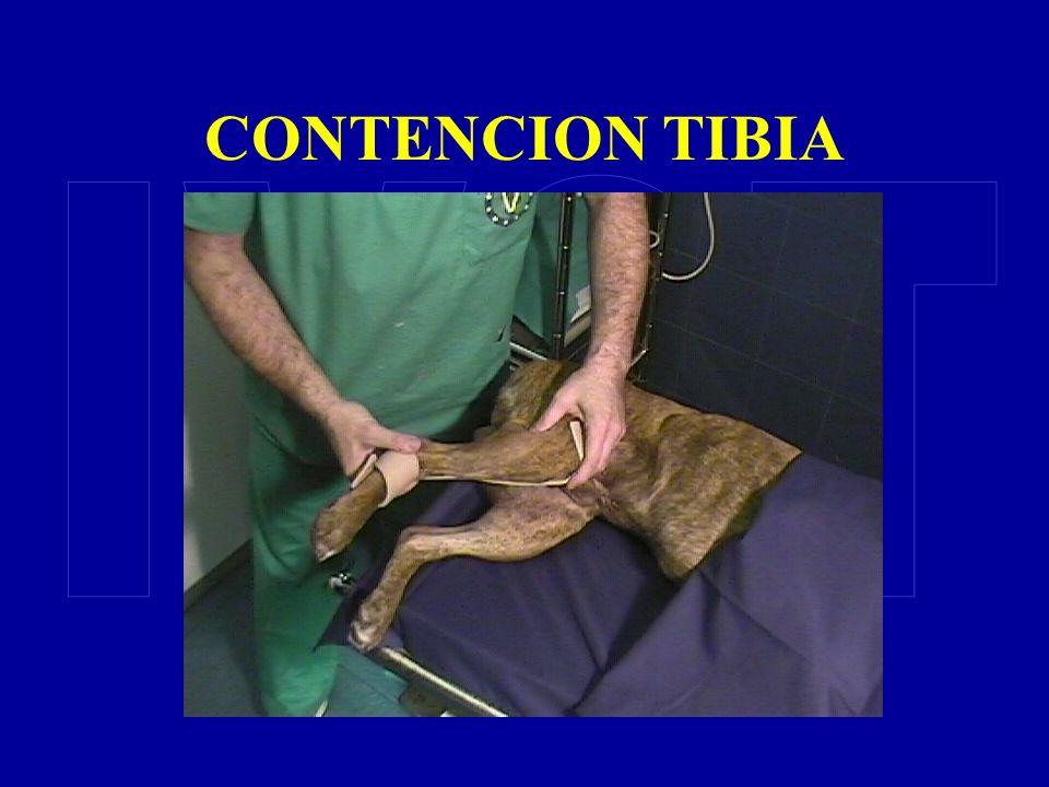 CONTENCION TIBIA