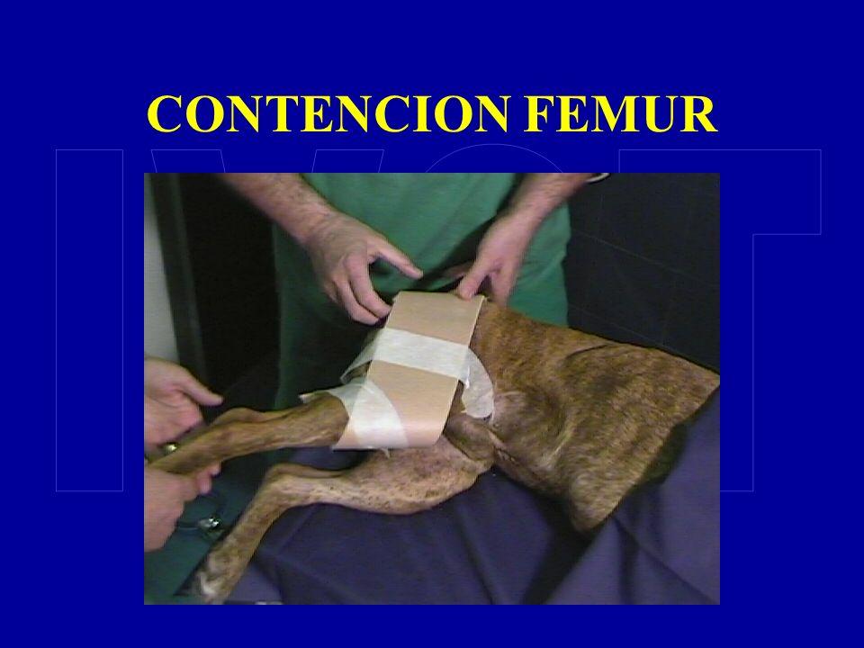 CONTENCION FEMUR
