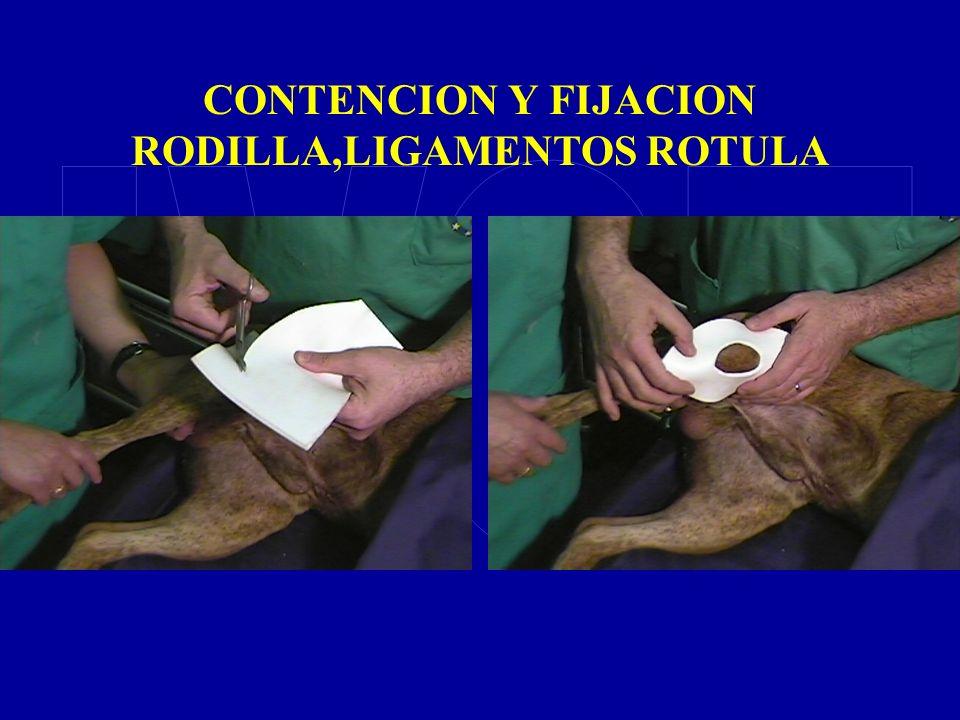 CONTENCION Y FIJACION RODILLA,LIGAMENTOS ROTULA