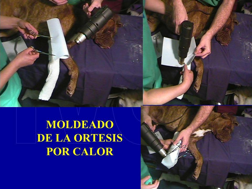 MOLDEADO DE LA ORTESIS POR CALOR
