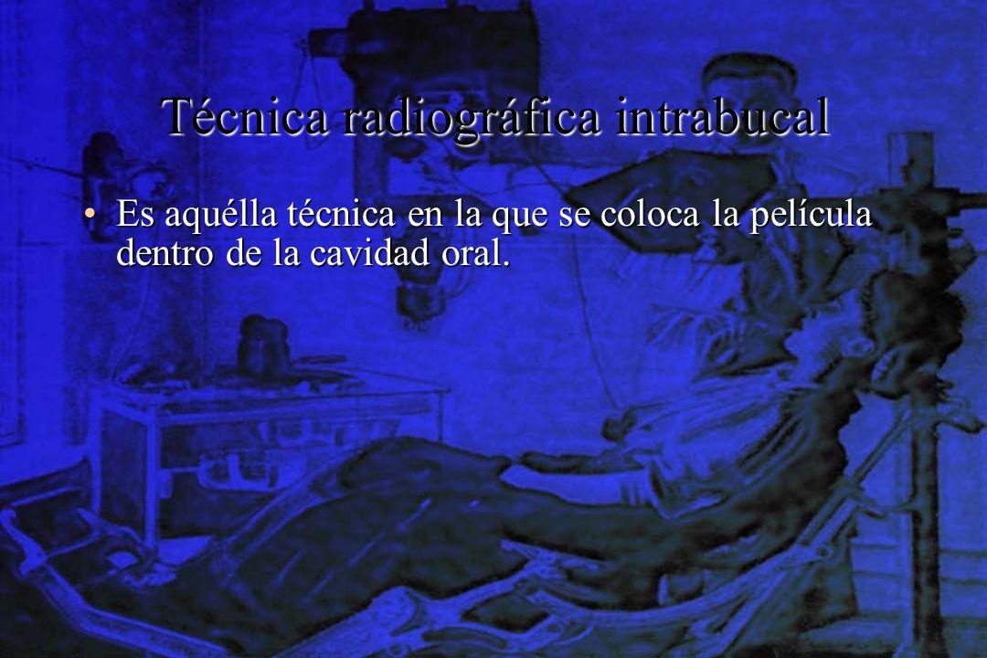 Técnica radiográfica intrabucal Es aquélla técnica en la que se coloca la película dentro de la cavidad oral.Es aquélla técnica en la que se coloca la