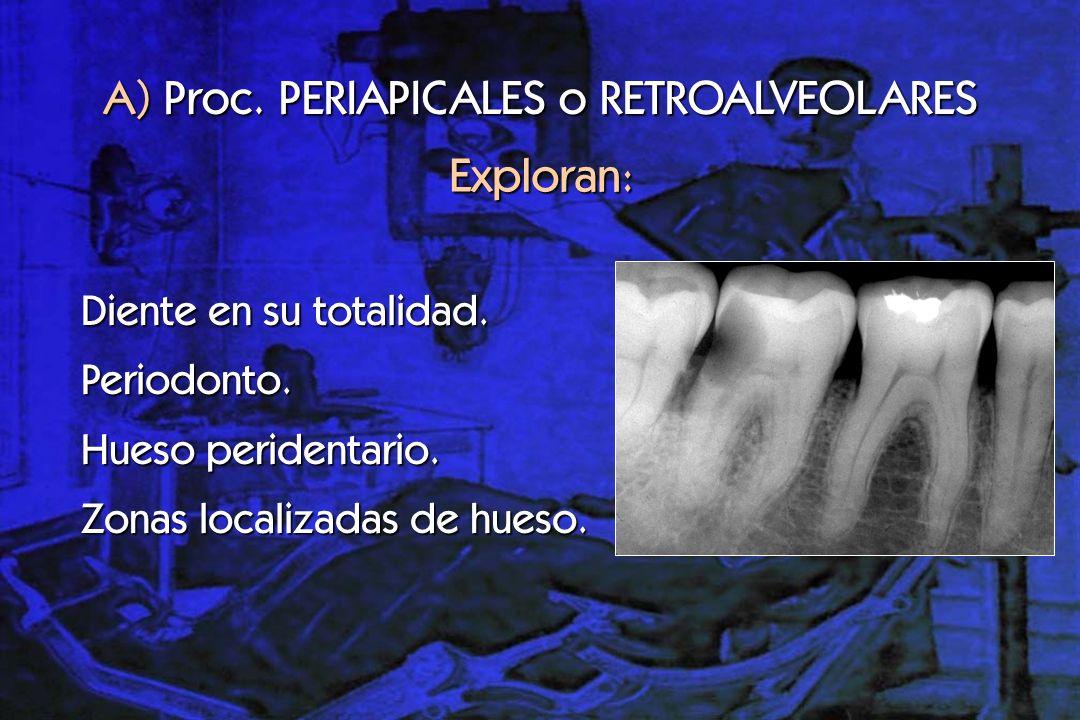 B) Proc.INTERPROXIMAL o de ALETA DE MORDIDA Descrito en 1920 por Raper.