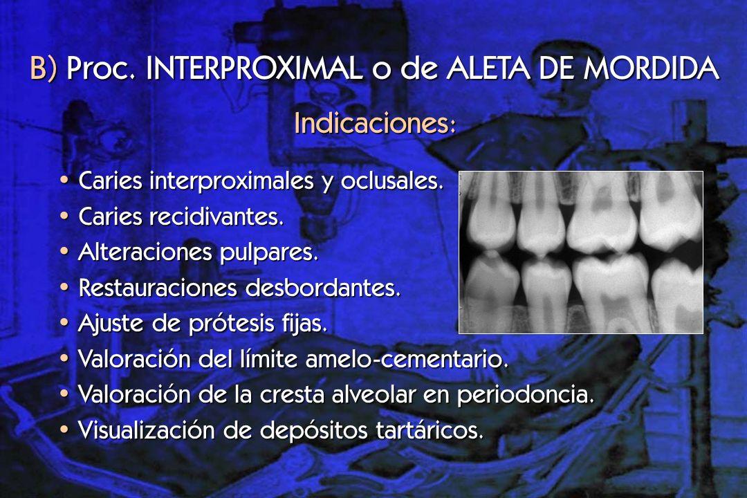 Coronas dentarias.Rebordes alveolares maxilares. Exploran: B) Proc.
