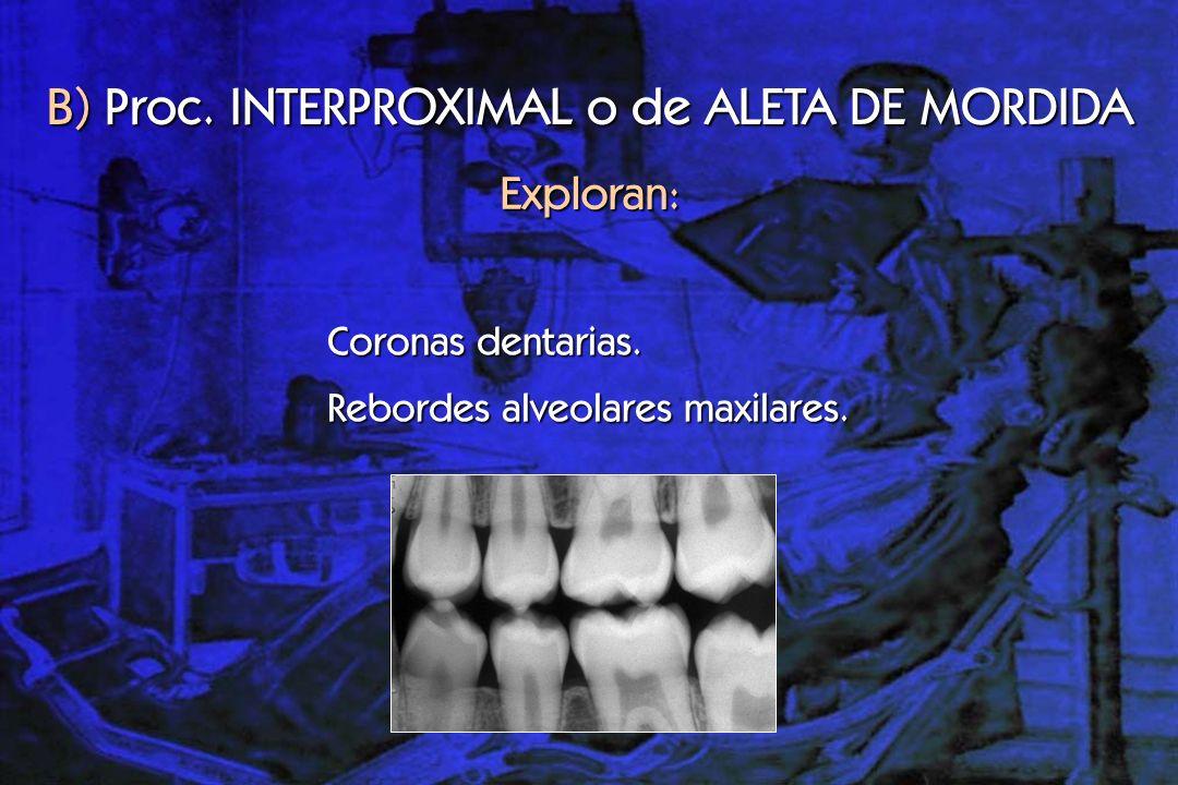 C) Proc.OCLUSAL Superior: Visualizan maxilar superior.
