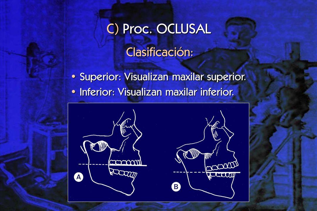 Indicaciones: Patología traumática en dientes anteriores.