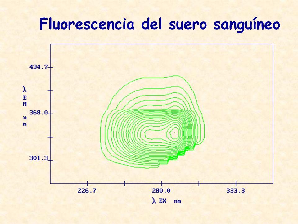 Fluorescencia del suero sanguíneo