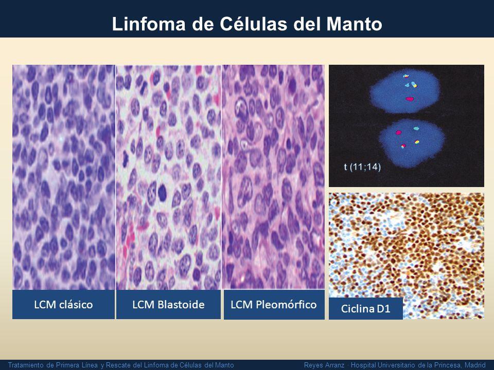 Tratamiento de Primera Línea y Rescate del Linfoma de Células del Manto Reyes Arranz · Hospital Universitario de la Princesa, Madrid Estrategias Intensivas ReferenciaESQUEMA% FINALIZAN TTO MRT PRECOZ SMD/LAM 2ª neoplasias Romaguera et al JCO 2005 Br J Hematol 2010 R-HyperCVAD/ R- Mtx - Ara C 705 (5%)SMD/LAM (4%) Geisler et al Blood 2008 MaxiCHOP/Ara C- R x 4 + BEAM TPH 62 (30% progresan y 8% toxicidad) 4 (2.5%)4 SMD (2.5%) + 2 neos no GELTAMO Arranz R et al ASH 2009 R-HyperCVAD/ R-Mtx- AraC Z 60 (33% toxicidad, 3% progresión, 3% otros) 1 (3.3%)1 LAM (3.3%) + 2 neos no La mejor opción para pacientes < 60 años y sin comorbilidad Supervivencia Libre de Progresión 65%- 80% No curan