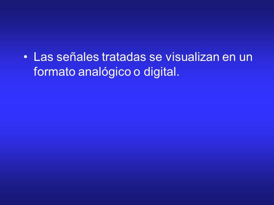 Las señales tratadas se visualizan en un formato analógico o digital.