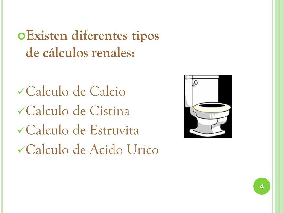 Existen diferentes tipos de cálculos renales: Calculo de Calcio Calculo de Cistina Calculo de Estruvita Calculo de Acido Urico 4