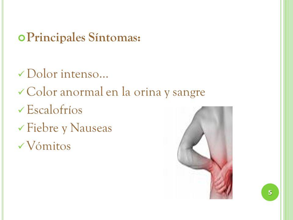 Principales Síntomas: Dolor intenso… Color anormal en la orina y sangre Escalofríos Fiebre y Nauseas Vómitos 5