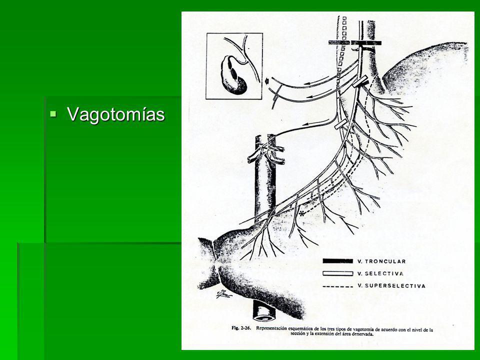 Vagotomia supraselectiva Vagotomia supraselectiva