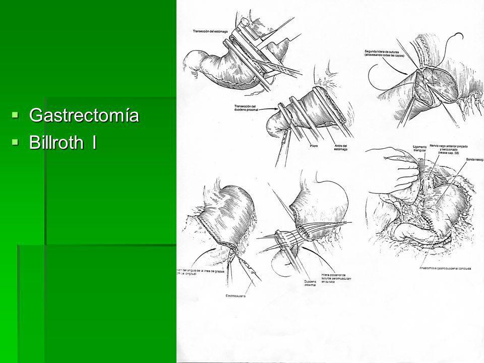 Gastrectomía Gastrectomía Billroth II Billroth II