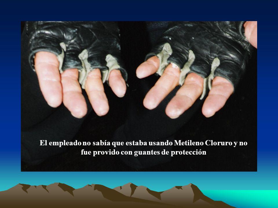 El empleado no sabía que estaba usando Metileno Cloruro y no fue provido con guantes de protección
