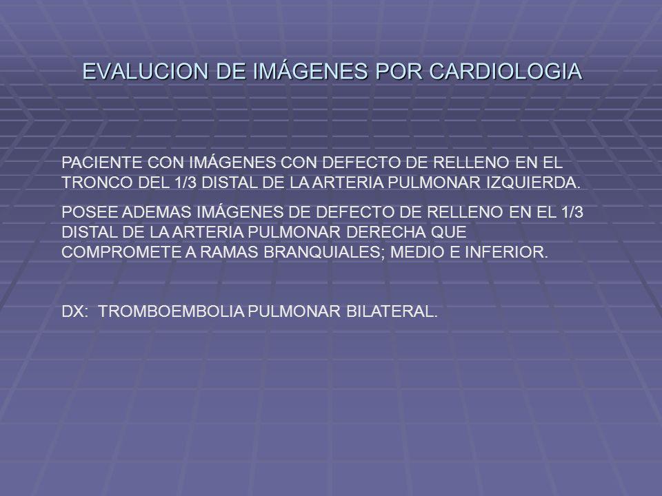 EVALUCION DE IMÁGENES POR CARDIOLOGIA PACIENTE CON IMÁGENES CON DEFECTO DE RELLENO EN EL TRONCO DEL 1/3 DISTAL DE LA ARTERIA PULMONAR IZQUIERDA. POSEE