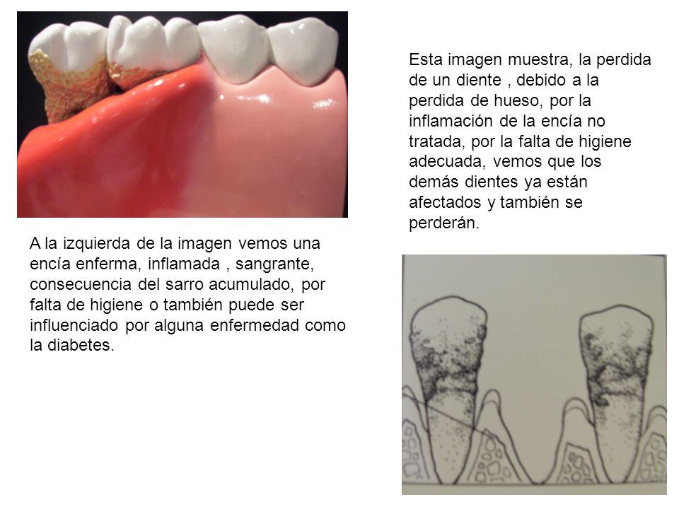 A la izquierda de la imagen vemos una encía enferma, inflamada, sangrante, consecuencia del sarro acumulado, por falta de higiene o también puede ser