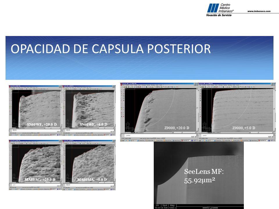 OPACIDAD DE CAPSULA POSTERIOR SN60WF, +20.0 DSN60WF, +6.0 D MA60AC, +20.0 DMA60MA, +0.0 D Z9000, +20.0 DZ9000, +5.0 D SeeLens MF: 55.92µm²