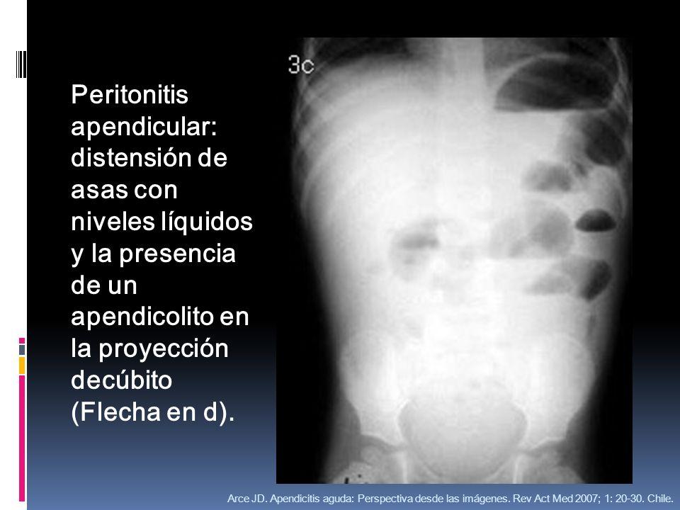 Peritonitis apendicular: distensión de asas con niveles líquidos y la presencia de un apendicolito en la proyección decúbito (Flecha en d). Arce JD. A