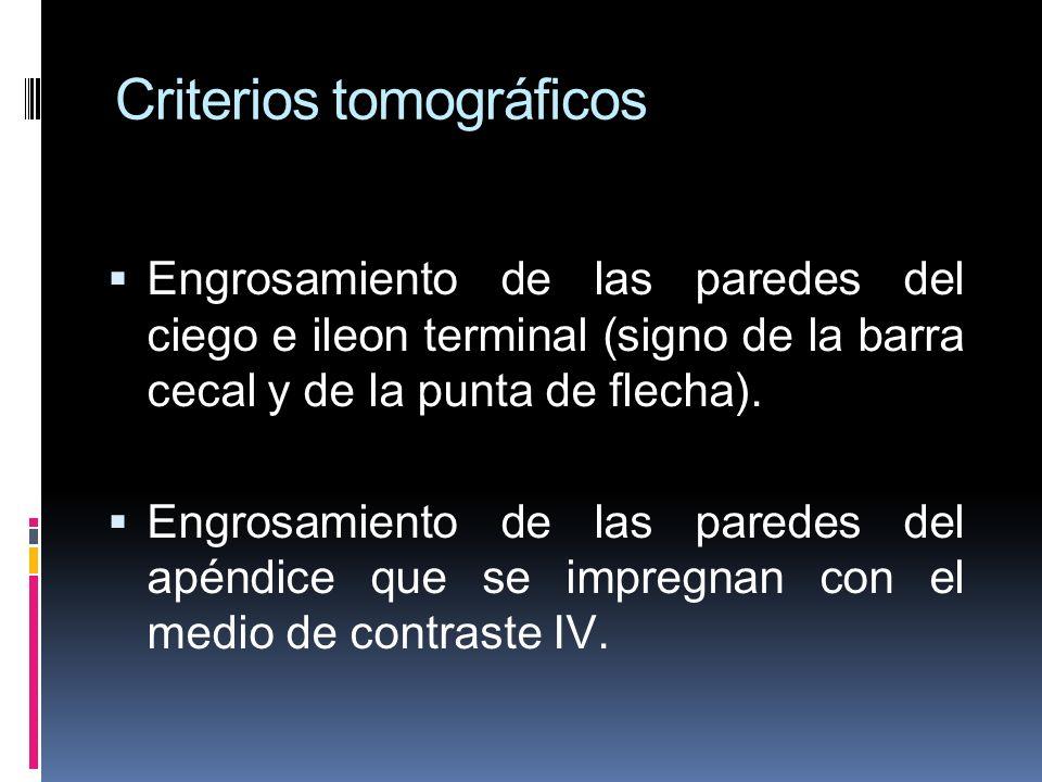 Criterios tomográficos Engrosamiento de las paredes del ciego e ileon terminal (signo de la barra cecal y de la punta de flecha). Engrosamiento de las