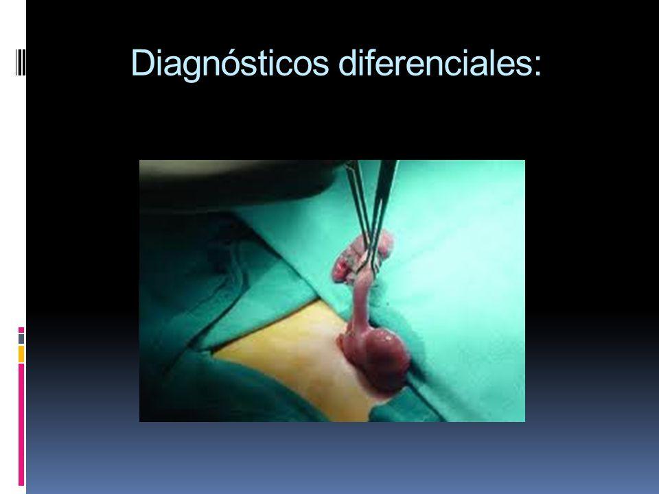 Diagnósticos diferenciales: