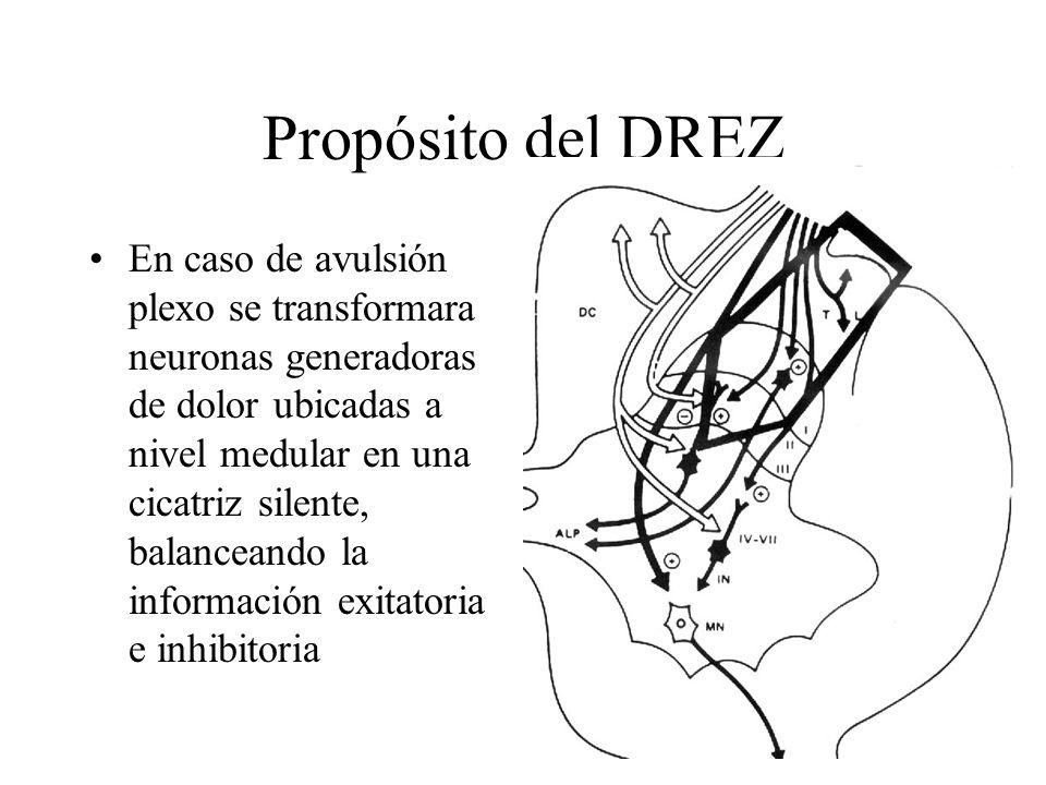 Propósito del DREZ En caso de avulsión plexo se transformara neuronas generadoras de dolor ubicadas a nivel medular en una cicatriz silente, balancean