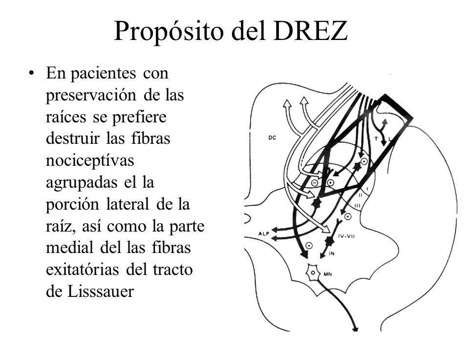 Propósito del DREZ En pacientes con preservación de las raíces se prefiere destruir las fibras nociceptívas agrupadas el la porción lateral de la raíz