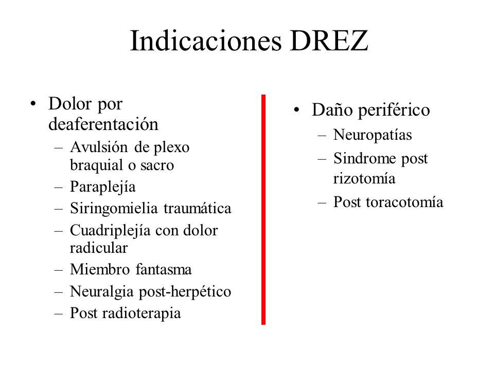 Indicaciones DREZ Dolor por deaferentación –Avulsión de plexo braquial o sacro –Paraplejía –Siringomielia traumática –Cuadriplejía con dolor radicular