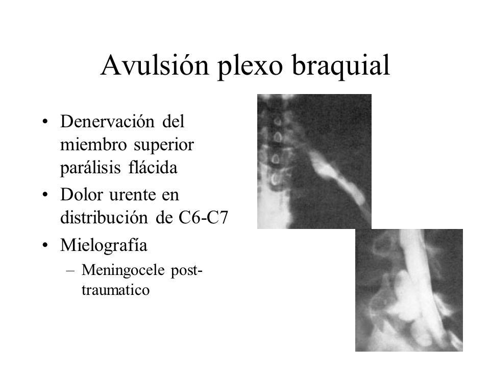 Avulsión plexo braquial Denervación del miembro superior parálisis flácida Dolor urente en distribución de C6-C7 Mielografía –Meningocele post- trauma