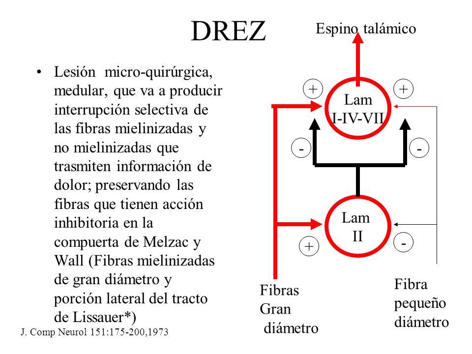 Propósito del DREZ En pacientes con preservación de las raíces se prefiere destruir las fibras nociceptívas agrupadas el la porción lateral de la raíz, así como la parte medial del las fibras exitatórias del tracto de Lisssauer