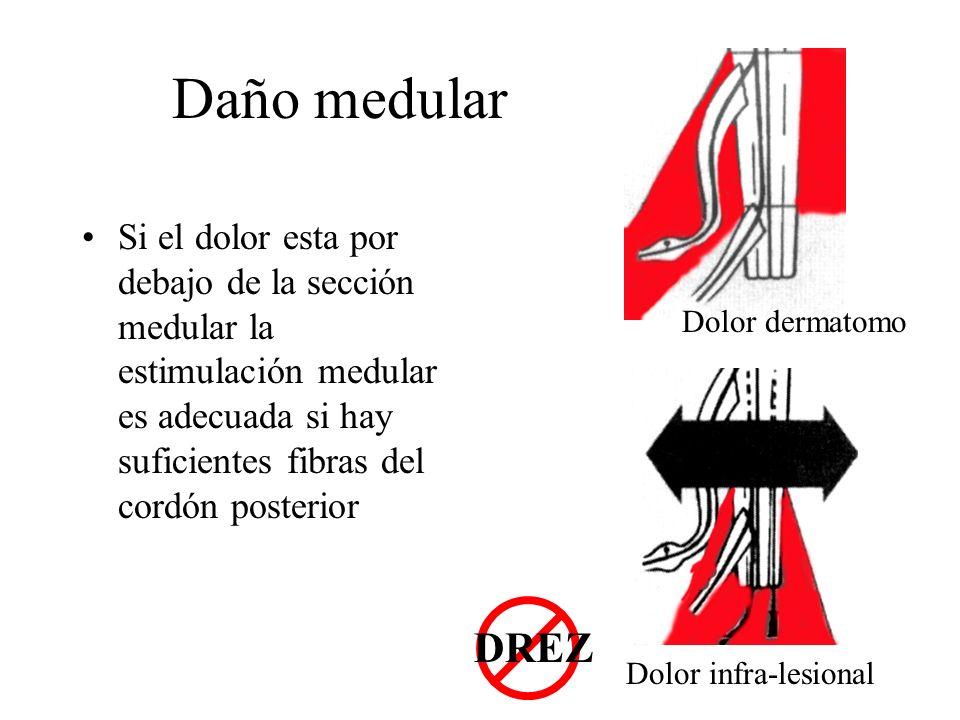 Daño medular Si el dolor esta por debajo de la sección medular la estimulación medular es adecuada si hay suficientes fibras del cordón posterior Dolo