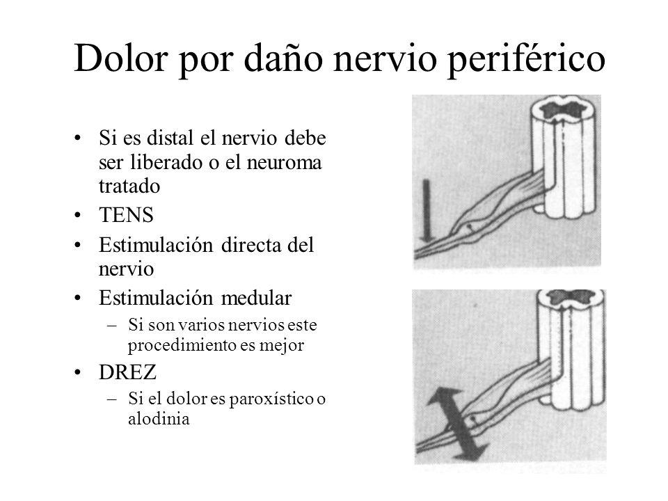 Dolor por daño nervio periférico Si es distal el nervio debe ser liberado o el neuroma tratado TENS Estimulación directa del nervio Estimulación medul