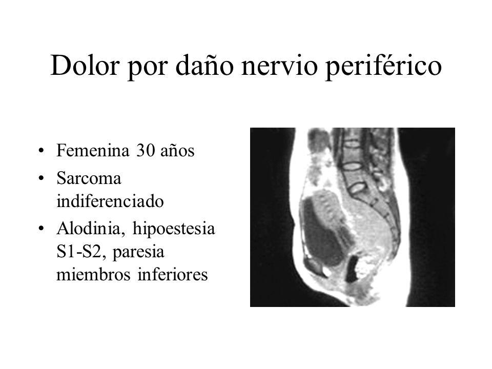 Dolor por daño nervio periférico Femenina 30 años Sarcoma indiferenciado Alodinia, hipoestesia S1-S2, paresia miembros inferiores