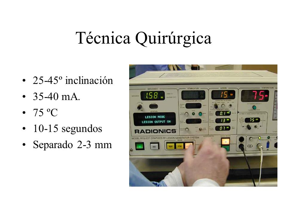 Técnica Quirúrgica 25-45º inclinación 35-40 mA. 75 ºC 10-15 segundos Separado 2-3 mm