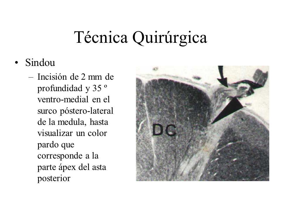 Técnica Quirúrgica Sindou –Incisión de 2 mm de profundidad y 35 º ventro-medial en el surco póstero-lateral de la medula, hasta visualizar un color pa