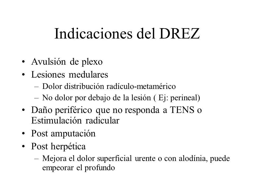 Indicaciones del DREZ Avulsión de plexo Lesiones medulares –Dolor distribución radículo-metamérico –No dolor por debajo de la lesión ( Ej: perineal) D