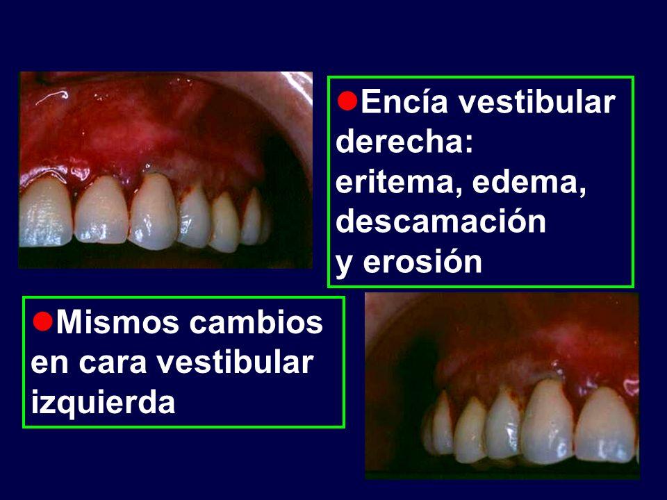 Historia clínica Sintomatología: ardor Signos: gingivorragia sangrado al sondaje Examen extraoral: normal Dentadura: implantes de titanio AP: sin datos de interés