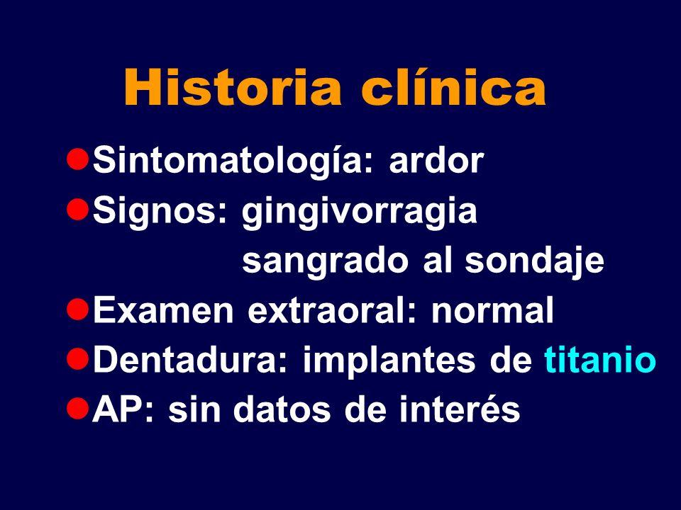 Historia clínica Sintomatología: ardor Signos: gingivorragia sangrado al sondaje Examen extraoral: normal Dentadura: implantes de titanio AP: sin dato