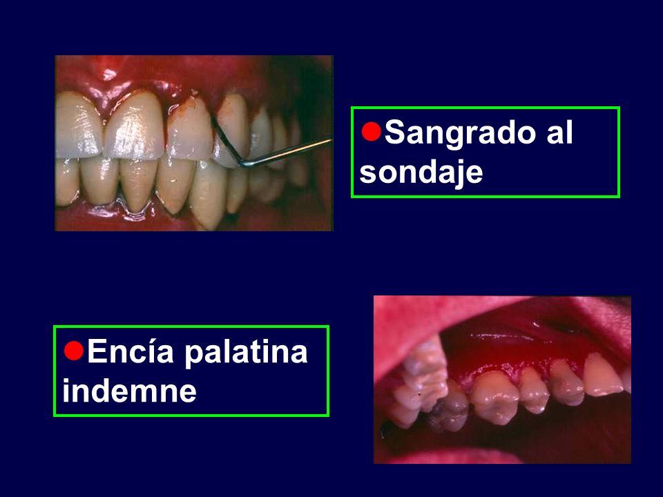 Diagnóstico diferencial Gingivitis peri implante Peri implantitis Penfigoide ampollar Gingivitis descamativa: 1.Liquen plano erosivo o atrófico 2.Penfigo vulgar 3.Lupus eritematoso 4.Eritema polimorfo