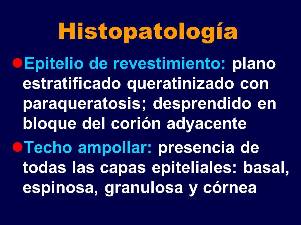 Histopatología Corión: proyección de papilas hacia cavidad ampollar Infiltrado de linfocitos, neutrófilos y algunos eosinófilos que migran al epitelio y ampolla Congestión y dilatación vascular PAS: ampolla subepidérmica Dx: Penfigoide cicatrizal