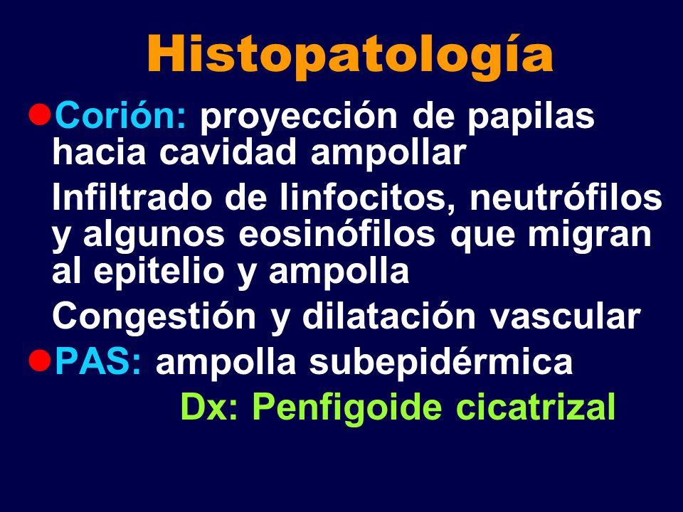 Histopatología Corión: proyección de papilas hacia cavidad ampollar Infiltrado de linfocitos, neutrófilos y algunos eosinófilos que migran al epitelio