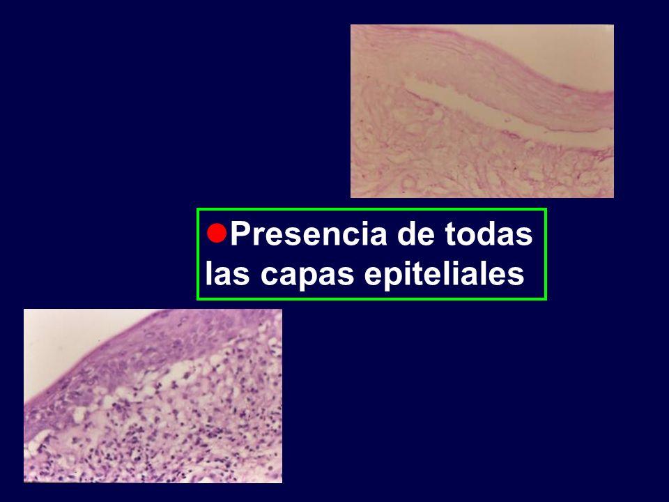 Presencia de todas las capas epiteliales