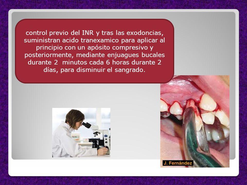control previo del INR y tras las exodoncias, suministran acido tranexamico para aplicar al principio con un apósito compresivo y posteriormente, medi