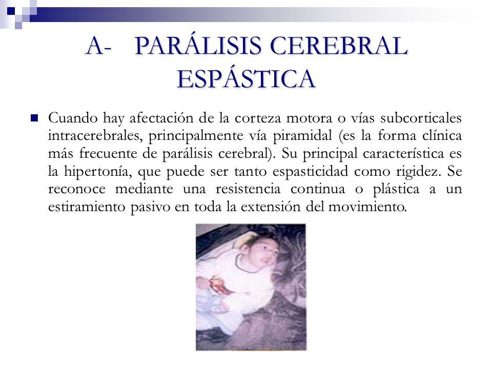 A- PARÁLISIS CEREBRAL ESPÁSTICA Cuando hay afectación de la corteza motora o vías subcorticales intracerebrales, principalmente vía piramidal (es la f