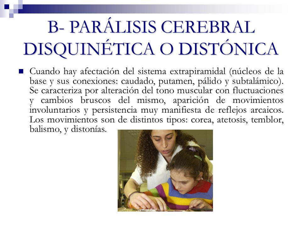 B- PARÁLISIS CEREBRAL DISQUINÉTICA O DISTÓNICA Cuando hay afectación del sistema extrapiramidal (núcleos de la base y sus conexiones: caudado, putamen