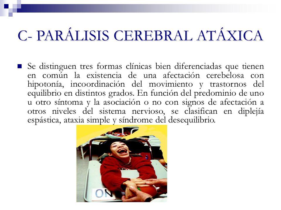 D- PARÁLISIS CEREBRAL MIXTA Se hallan combinaciones de diversos trastornos motores y extrapiramidales con distintos tipos de alteraciones del tono y combinaciones de diplejía o hemiplejías espásticas, sobre todo atetósicos.